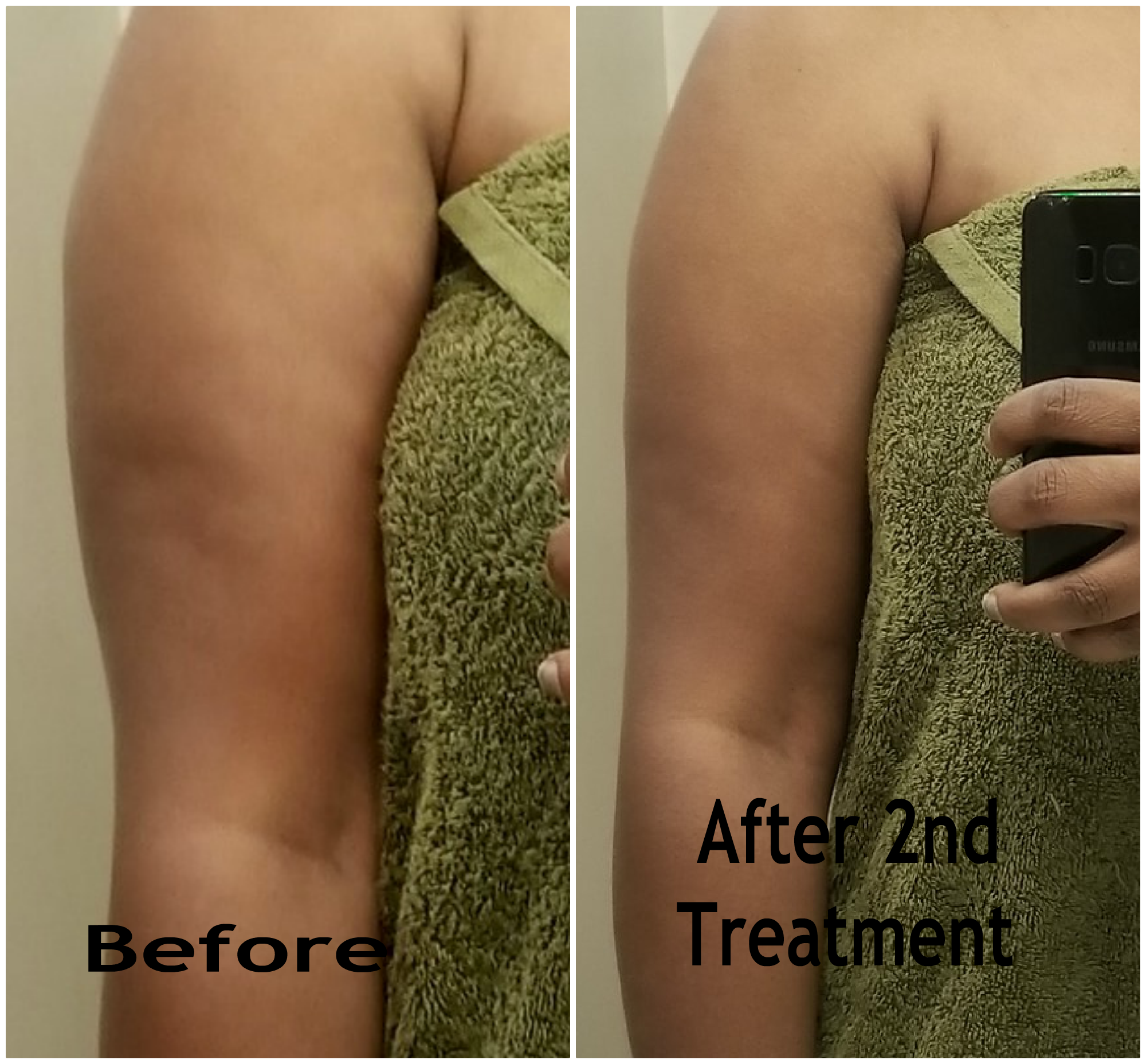 THE BELLA SHAPE iCoone EXPERIENCE - BEFORE & AFTER RESULTS (part 1)
