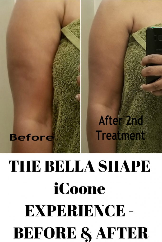 THE BELLA SHAPE iCoone EXPERIENCE – BEFORE & AFTER RESULTS (part 1)